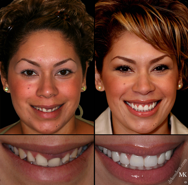 How Can Porcelain Dental Veneers Help Veneers