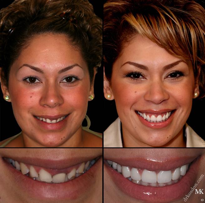 Cosmetic Dentist NYC | Dr. Victoria Veytsman
