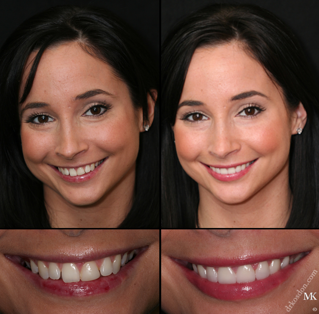 Smile Makeover Manhattan New York City NY. Denture Makeover Related Keywords   Suggestions   Denture Makeover