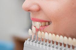 porcelain-dental-veneers