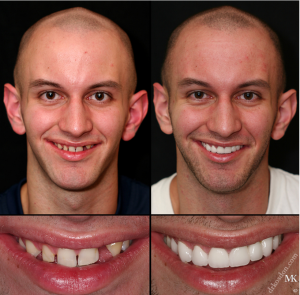 dental implants results