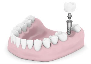 dentalimplants copy
