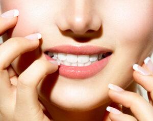 Woman smiling showing white teeth