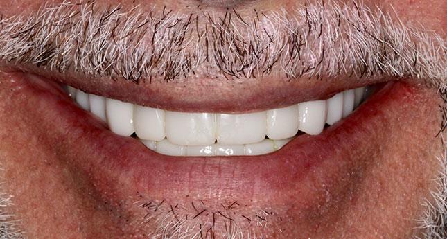 Before Teeth
