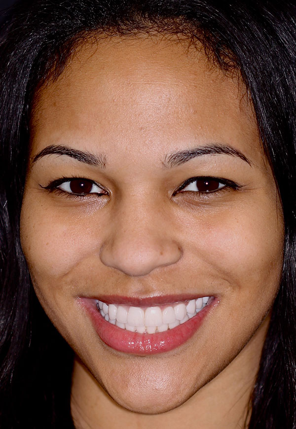 Female patient of Dr. Kosdon with brilliantly white, straight smile after porcelain veneers
