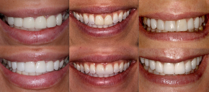 Cosmetic and  Restorative Dental Work Results