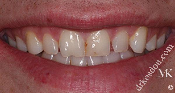 Teeth Before