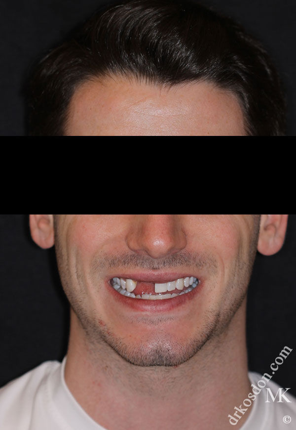 porcelain veneers before