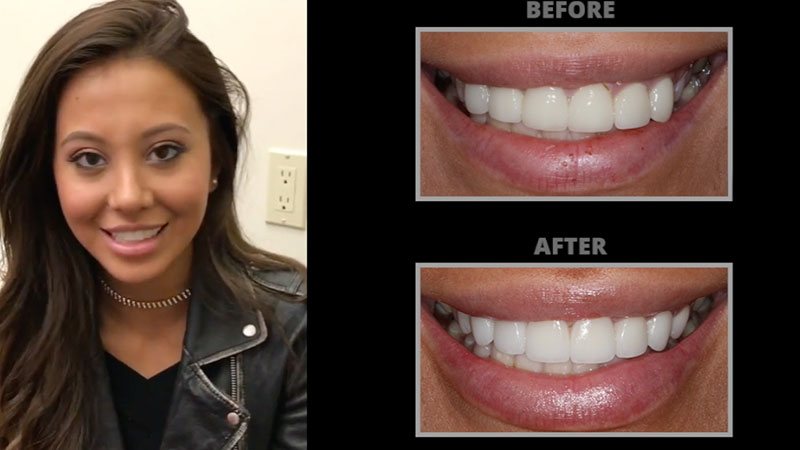 Smile Makeover Manhattan New York City NY
